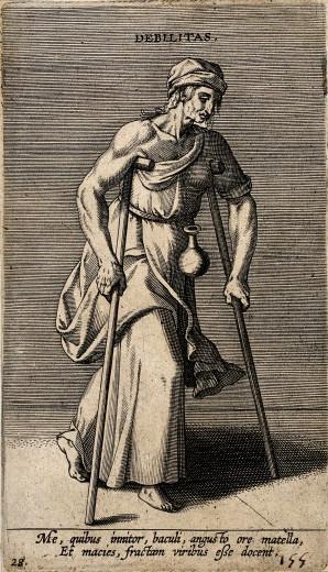Cornelis Galle (grabador) - Una mujer con muletas (S. XV-XVI)